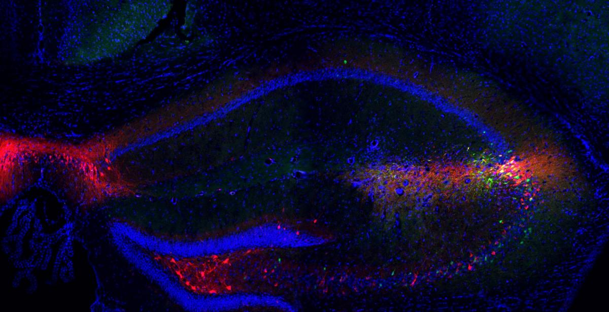 Microscope image shows medial septum neurons (magenta) projecting into the brain's social memory centers