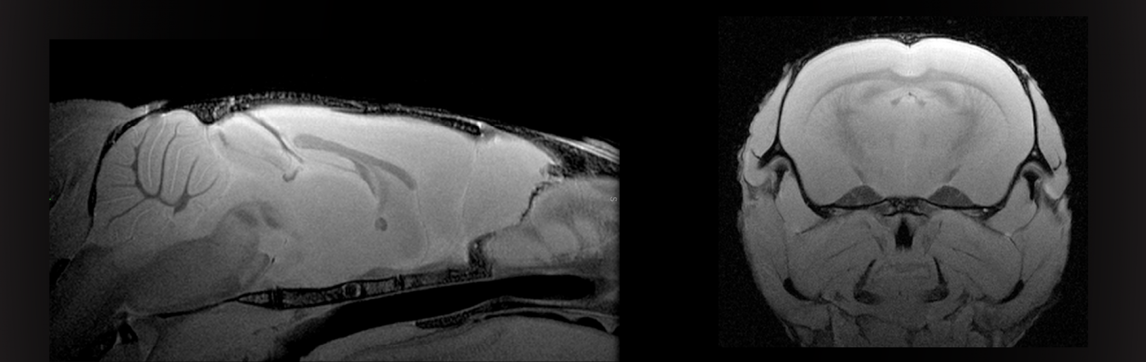 MRI images of fixed rodent brain, Neuroscience Preclinical Imaging Laboratory