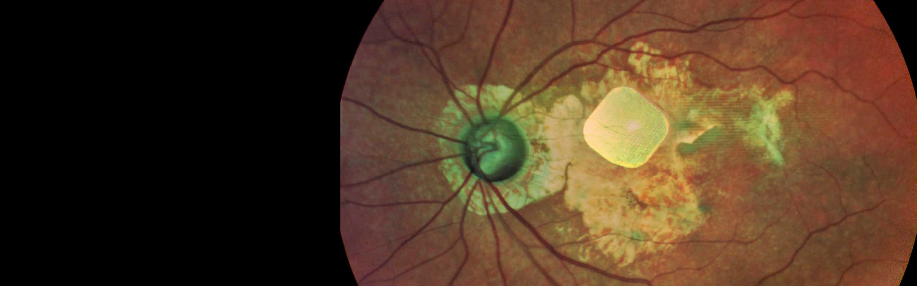 A grid of photodiodes, implanted in the eye of a person with macular degeneration, is one of several devices under development to restore vision.