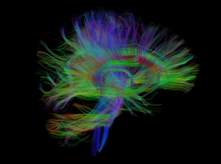 Visualization of nerve fiber tracts from MR diffusion imaging