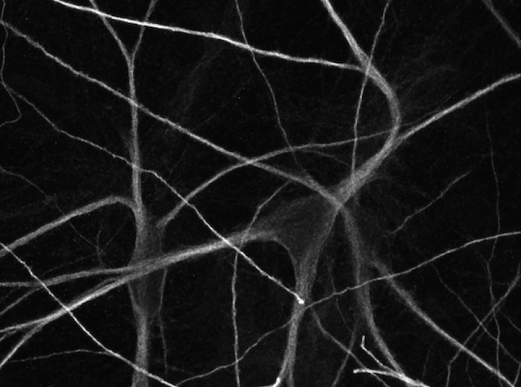Tangled neurons image projection