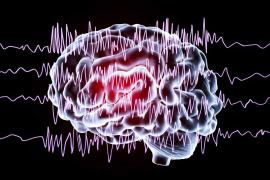 Brain with radio waves on top of it