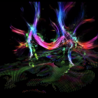 Visualization of diffusion tensor imaging (DTI) and tract density