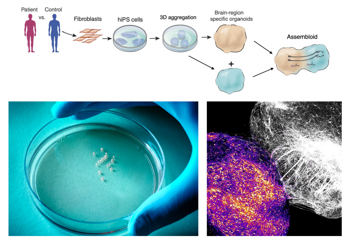 """Spheroids of cells mimicking different human brain regions can be derived from patient stem cells and combined into """"assembloids"""" that recreate the development of brain circuits involved in neuropsychiatric disorders. (Image credit Pasca Lab, Wu Tsai Neurosciences Institute, Stanford University)"""